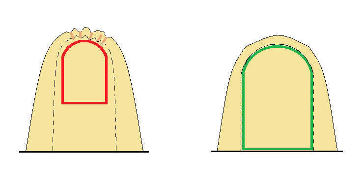"Head-on view of inflated augment showing seaming and (interior) buck placement — Left Image:  Multiple wrinkles and valleys pull into the augment crown due to buck placement well inside of the seaming and interior air pressure.  Once foamed these become hardend channels that direct rain run-off behind your window trim.  The buck was made 1.5"" larger than the hypothetical window on all sides.   Right Image:  The buck should be sized to fit just inside of the vertical plane and Airform seaming of the augment.  Hence, crowns, valleys and wrinkles are minimized.  The shape is taut.  The window framers will have ample room to install or retro-fit new window technology years later.  Rain run-off is also improved to roll off the sides of the augment."